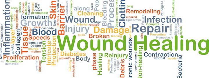 Wound healing and lupus