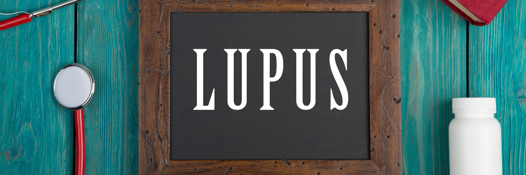 Lupus and Fatigue